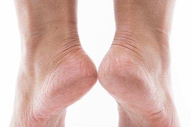 Uitgedroogde huid op de hielen van vrouwelijke voeten