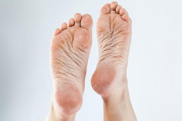 Uitgedroogde huid vrouwelijke hakken