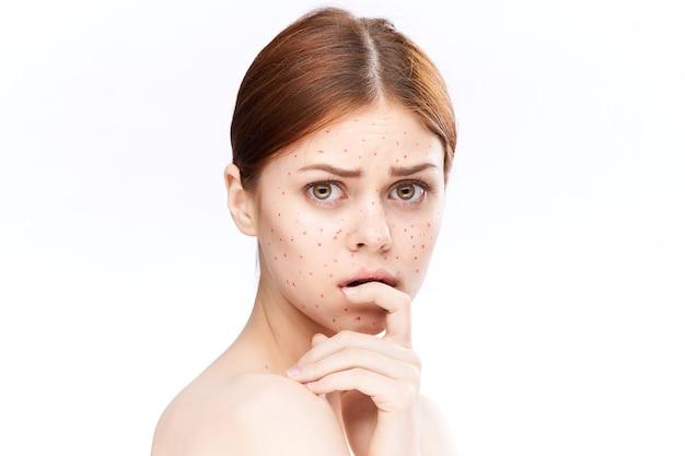 Uitslag bij vrouwen en ontsteking van het gezicht, acne en waterpokken
