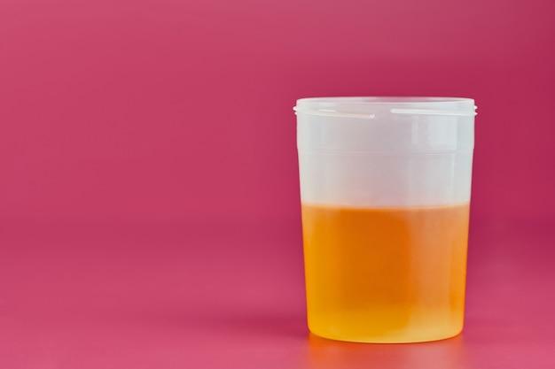 Urineonderzoek voor urolithiasis in een container