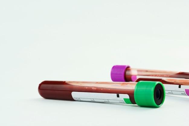 Vacuümbuizen voor verzameling en bloedmonsters en een spuit geïsoleerd op achtergrond selectieve focus