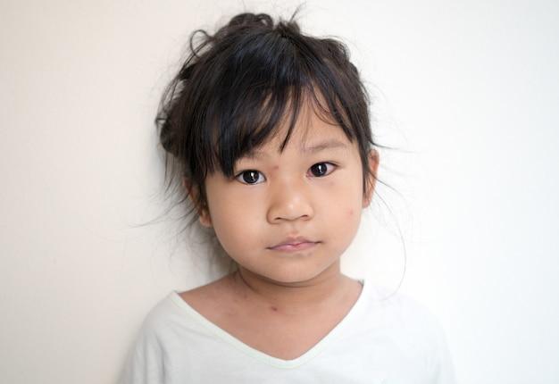 Varicella-virus of waterpokken zeepbel uitslag op aziatisch meisje met ziekte varicella.