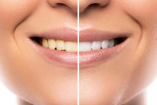 Vergelijking na het bleken van tanden
