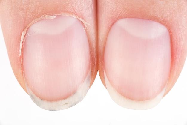 Vergelijking van de mooie en de lelijke manicure