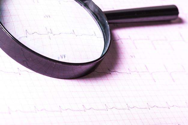 Vergrootglas op cardiogram