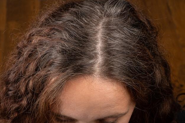 Verkleuring haar van grijze wortels op het hoofd van de vrouw
