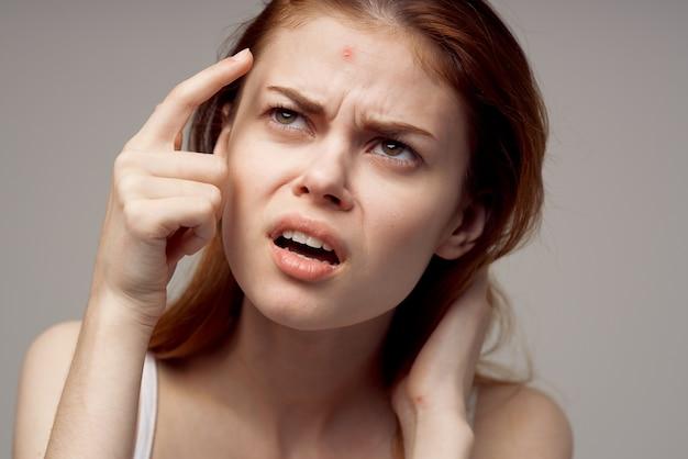 Verrast vrouw met acne op haar gezicht gezondheidsproblemen acne. hoge kwaliteit foto