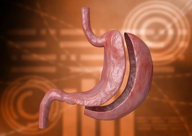 Verticale mouw gastrectomie. bariatrische chirurgie