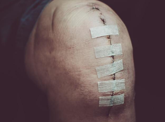 Vervangende knieoperatie operatie op oudere of oudere bejaarde patiënt na knieoperatie