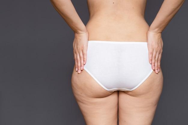 Vet vrouwelijk lichaam met cellulitis, volledige heupen en billen op een grijze achtergrond, achteraanzicht
