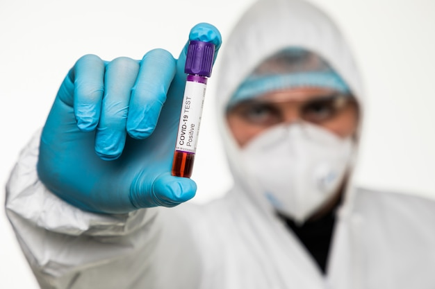 Viroloog in een medisch masker en beschermende kleding heeft een reageerbuis met een positief bloedmonster voor coronavirusonderzoek. pandemische covid 19. ademhalingssyndroom, paniek, ervaringen, onderzoek