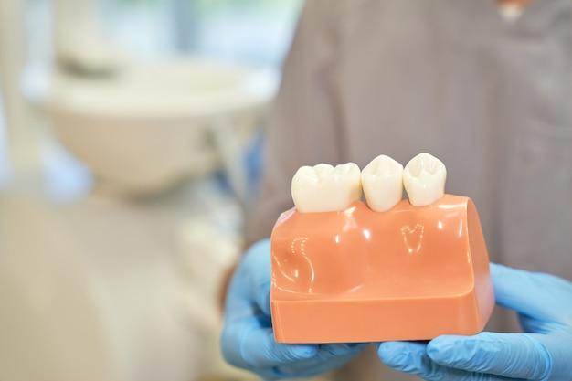 Visuele plastic prop van tandvlees en tanden gepresenteerd door tandarts
