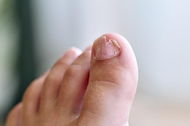 Voet van een 8-jarige jongen met zwakke nagels, geïsoleerd, geen gezichten getoond