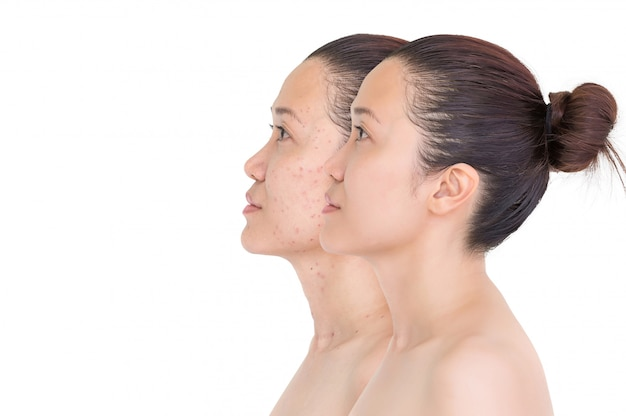 Voor en na laserbehandeling