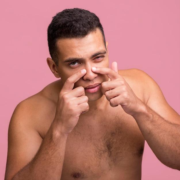 Vooraanzicht van de mens die puistje op zijn neus probeert te knallen