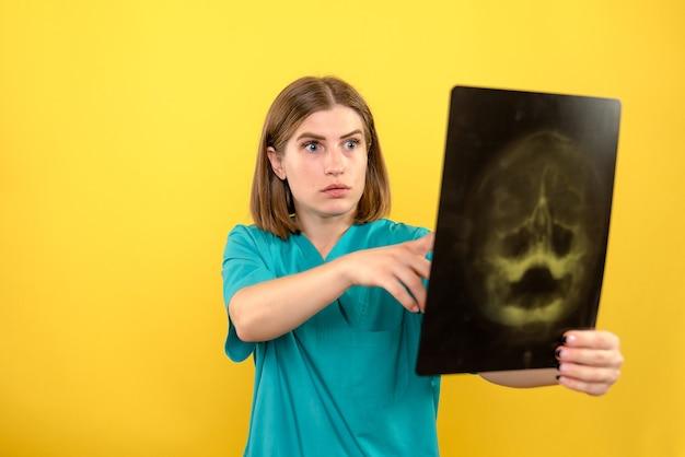 Vooraanzicht vrouwelijke arts die röntgenfoto op gele ruimte bekijkt