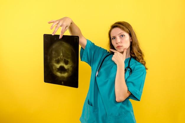Vooraanzicht vrouwelijke arts röntgenstraal op gele ruimte te houden