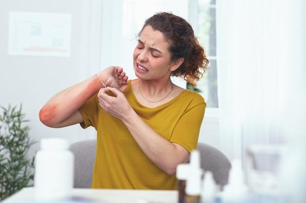 Vreselijke jeuk. jonge vrouw kijkt wanhopig en pijnlijk tijdens het toepassen van enkele dagelijkse medische procedures om haar allergische uitslag op ontstoken arm te genezen