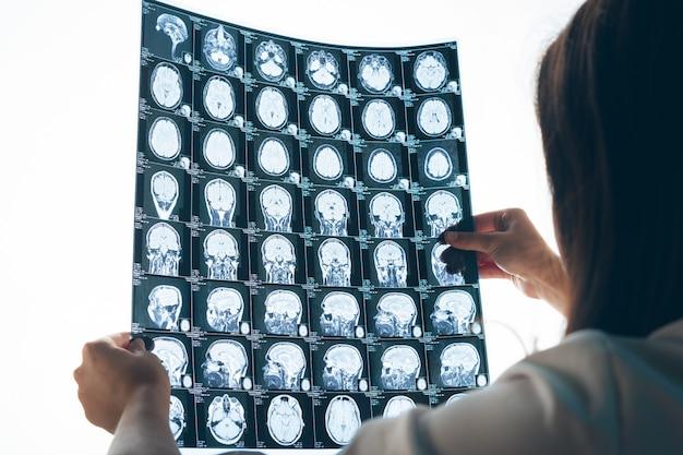 Vrouw arts die mr-beeld van de patiënt in haar kantoor onderzoeken