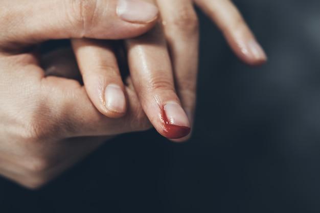 Vrouw bloedige vinger