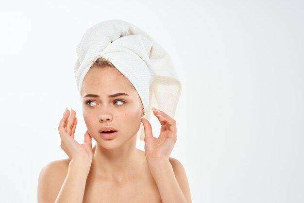 Vrouw blote schouders acne behandeling puistje studio close-up