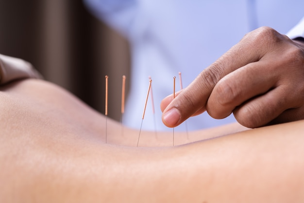 Vrouw die acupunctuurbehandeling op rug ondergaat