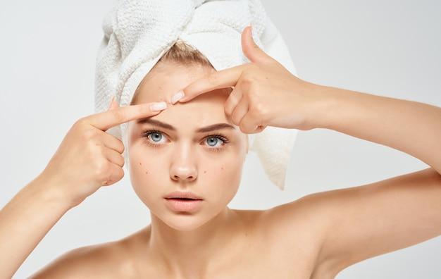 Vrouw en knijpt puistjes op haar gezicht probleemhuid met een handdoek op haar hoofd blote schouders.