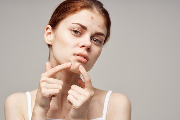 Vrouw gezicht huid probleem acne acne portret bijgesneden weergave close-up
