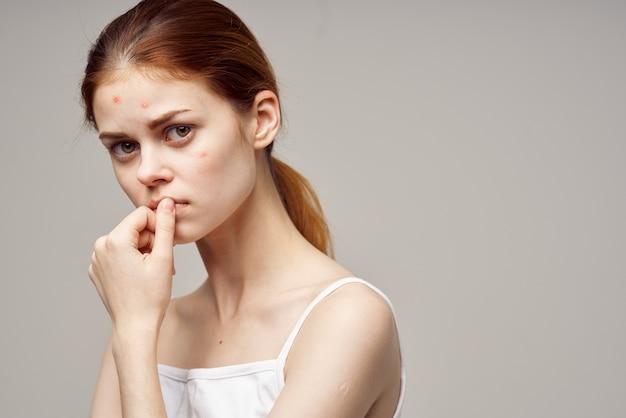 Vrouw gezicht huid probleem acne acne portret bijgesneden weergave
