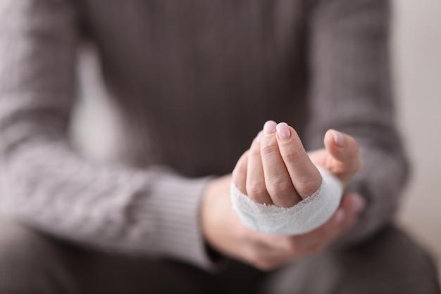 Vrouw hand verbonden met wit verband. handblessure concept