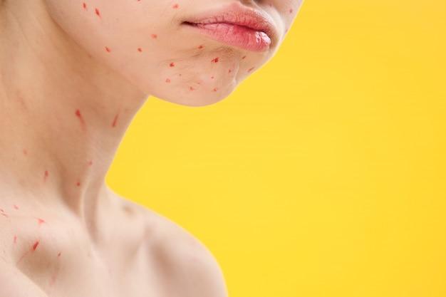 Vrouw huiduitslag en ontsteking van het gezicht, acne en waterpokken