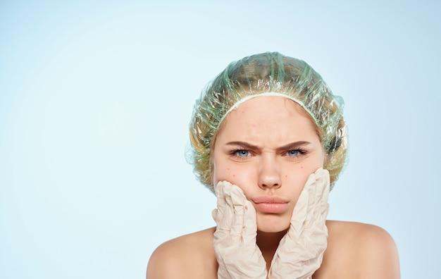 Vrouw in een pet acne op het gezicht en cosmetologie dermatologie huidverzorging.