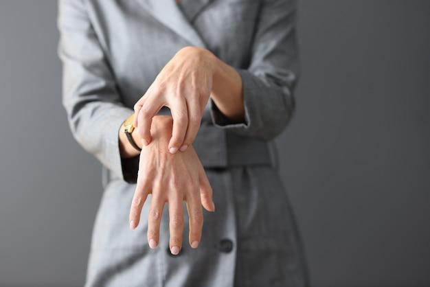 Vrouw in grijze jurk die haar handen krabt close-up opkomst van allergische ziekten concept