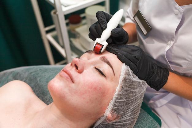 Vrouw in schoonheidssalon tijdens mesotherapie procedure met mesoscooter