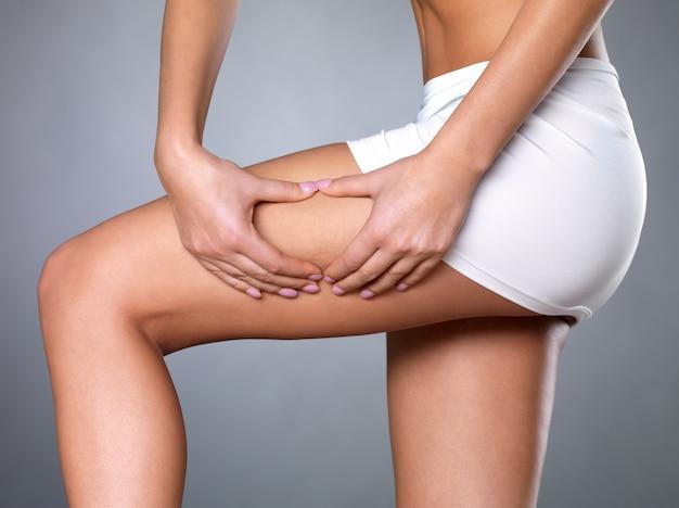 Vrouw knijpt cellulitis huid op haar benen - close-up shot op witte ruimte