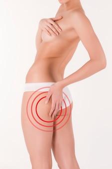 Vrouw knijpt in haar dij om cellulitis onder controle te houden. vetverlies, liposuctie en cellulitisverwijderingsconcept.