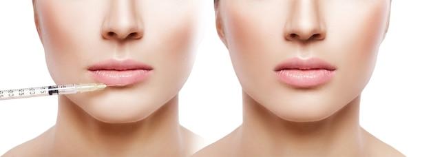 Vrouw krijgt injectie op de lippen. voor en na de procedure