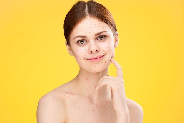 Vrouw met acne en waterpokken