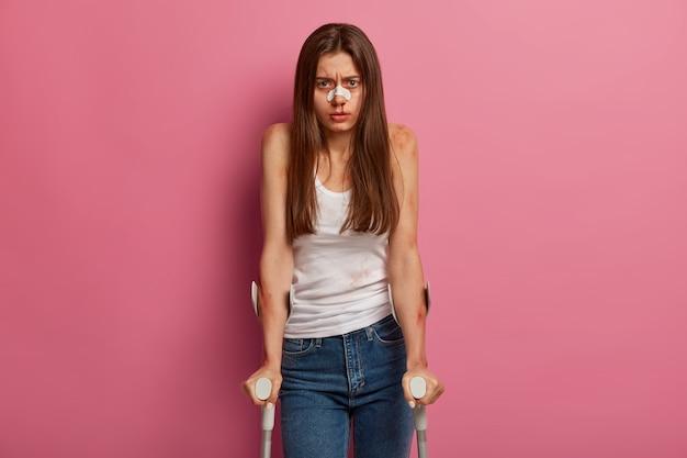 Vrouw met blauwe plekken en gebroken neus, ernstig gewond