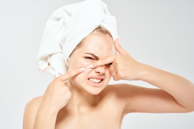 Vrouw met blote schouders acne op gezicht gezondheid close-up hematologie