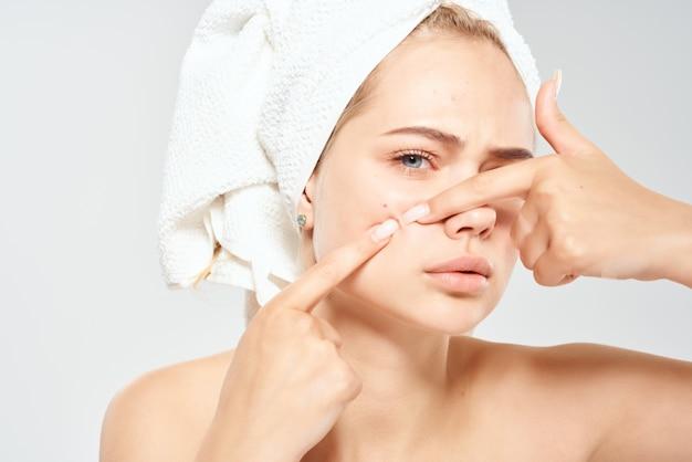 Vrouw met blote schouders met een handdoek op haar hoofd acne dermatologie