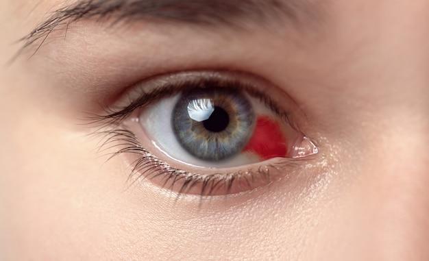Vrouw met burst bloedvat in oog