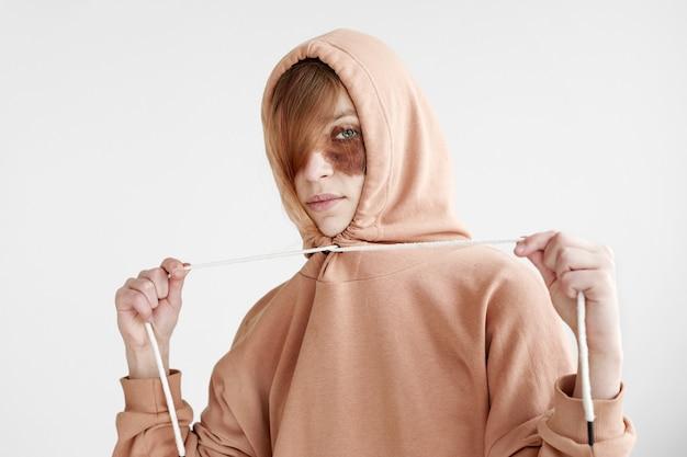 Vrouw met donkere vlek op gezicht in hoodie