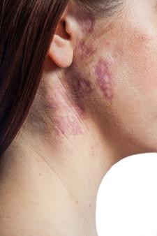 Vrouw met echte moedervlek met portwijnvlek op haar gezicht