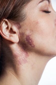 Vrouw met echte portwijnvlek op haar gezicht