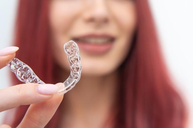 Vrouw met een mooie glimlach toont een transparante gebitsbeschermer