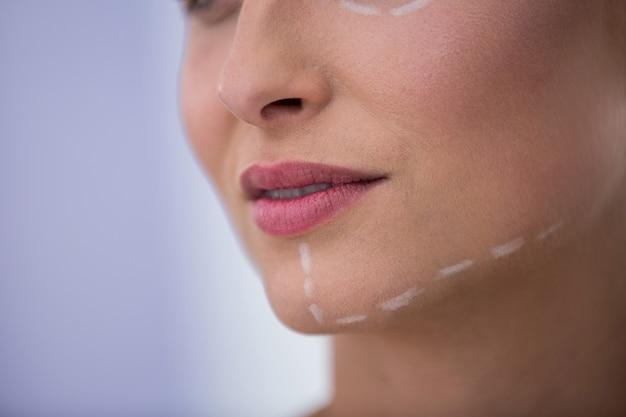 Vrouw met merken getekend voor cosmetische behandeling op haar kaak