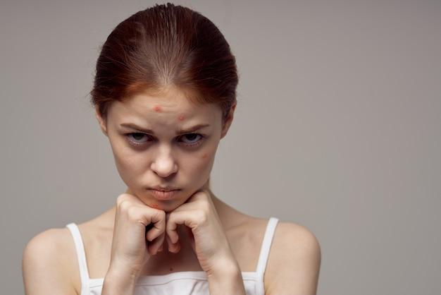 Vrouw met puistje op haar gezicht gezicht met handen aanraken gezondheidsproblemen acne