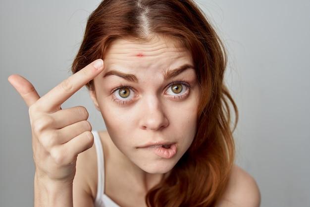 Vrouw met vergeven huidproblemen emoties ontevredenheid