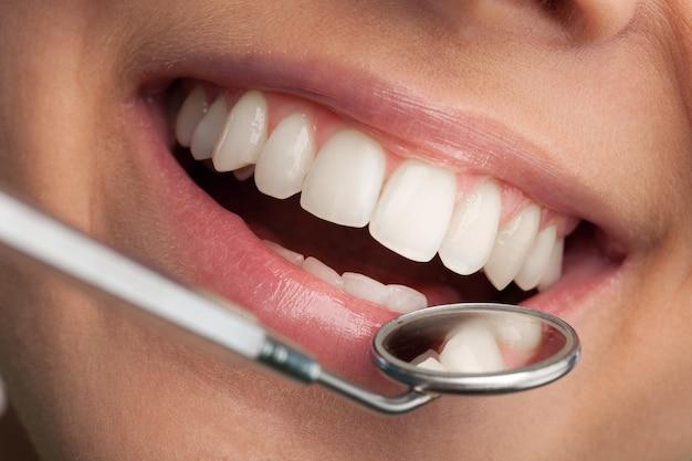 Vrouw tanden en een tandarts mond spiegel op de achtergrond, close-up
